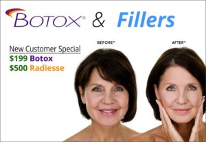 st lucie botox and fillers