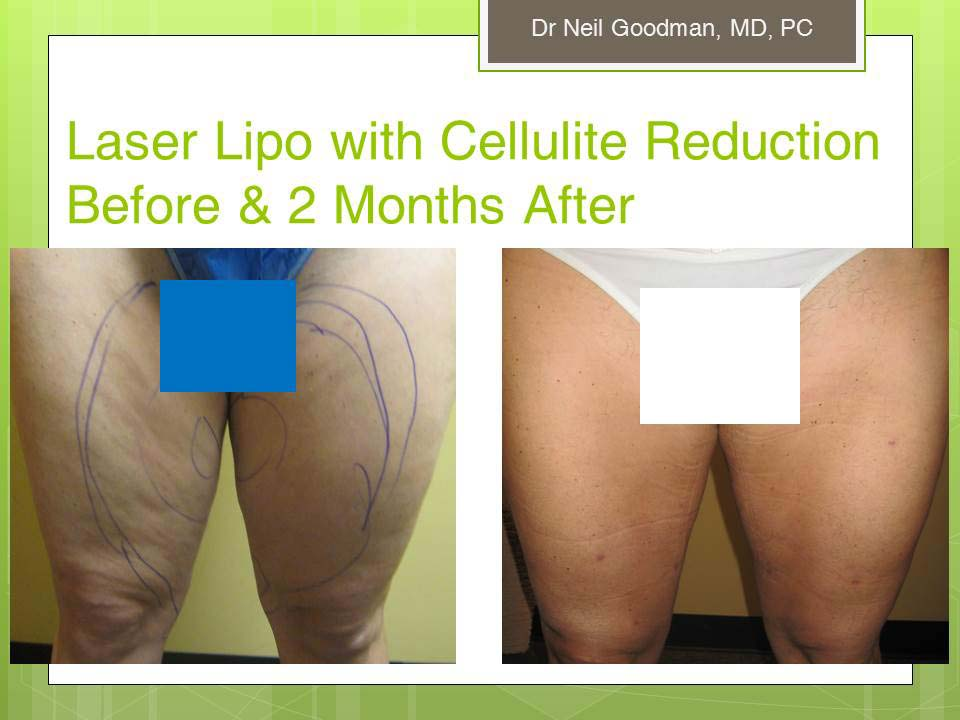 New Radiance MedSpa Cellulite Reduction Photos - Before and After