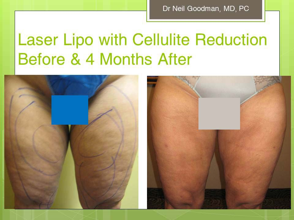 Cellulite Reduction/Laser Liposuction Results