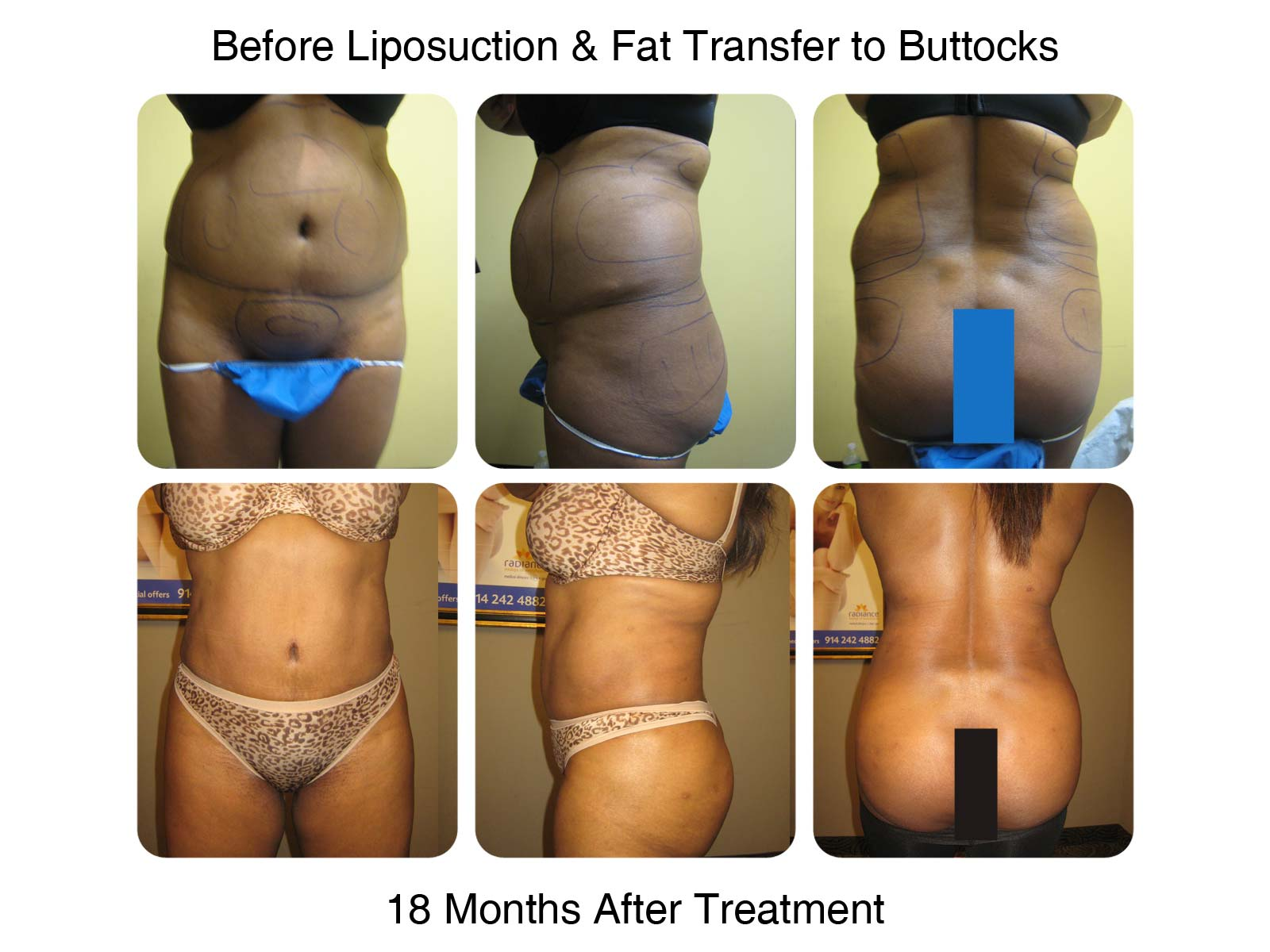 Brazilian Butt Lift Procedure - Before and After