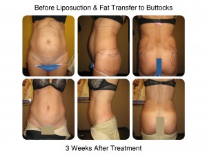 Before Liposuction & Fat Transfer to Buttocks - 3 Weeks After