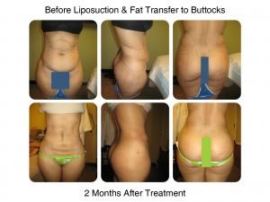 Brazilian Butt Lift - 2 Months After Treatment