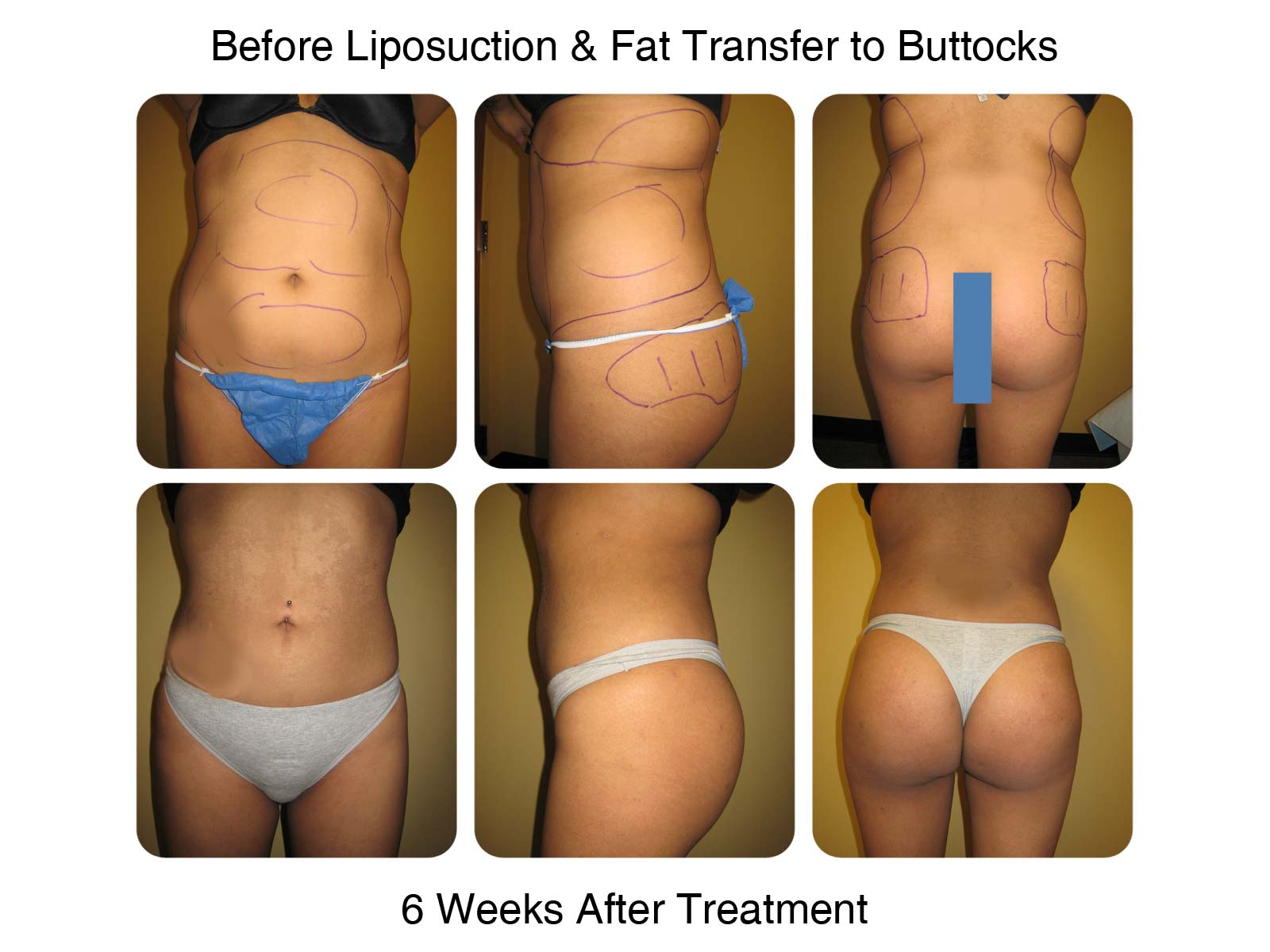 Fat Transfer to Butt Example