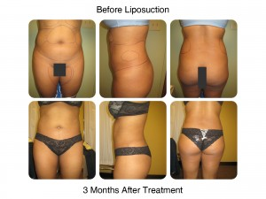 Liposuction - Before and 3 Months After
