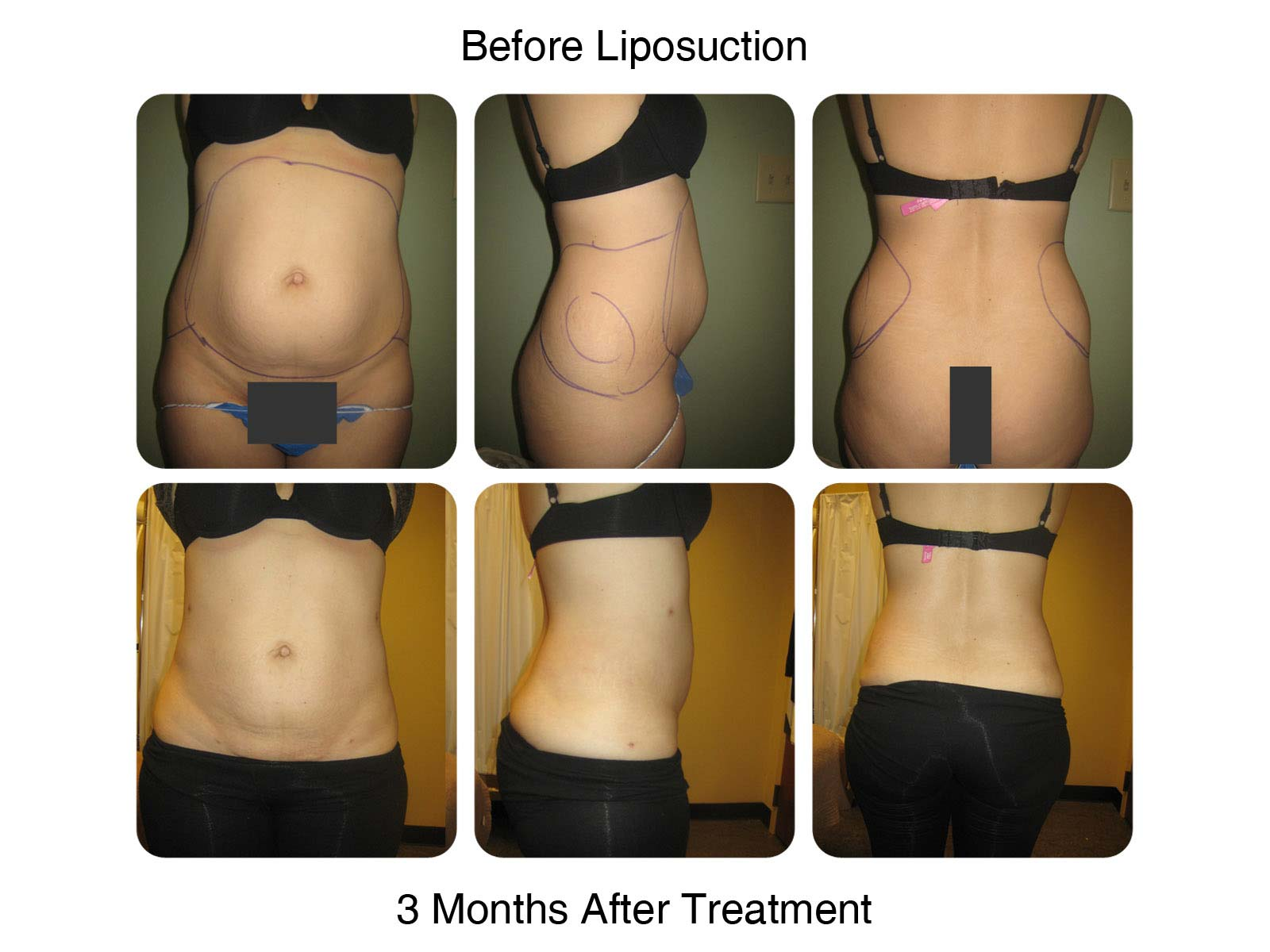 Before Lipo and and 3 Months After