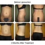 liposuction portfolio