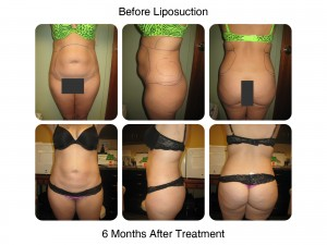Liposuction 6 Months After