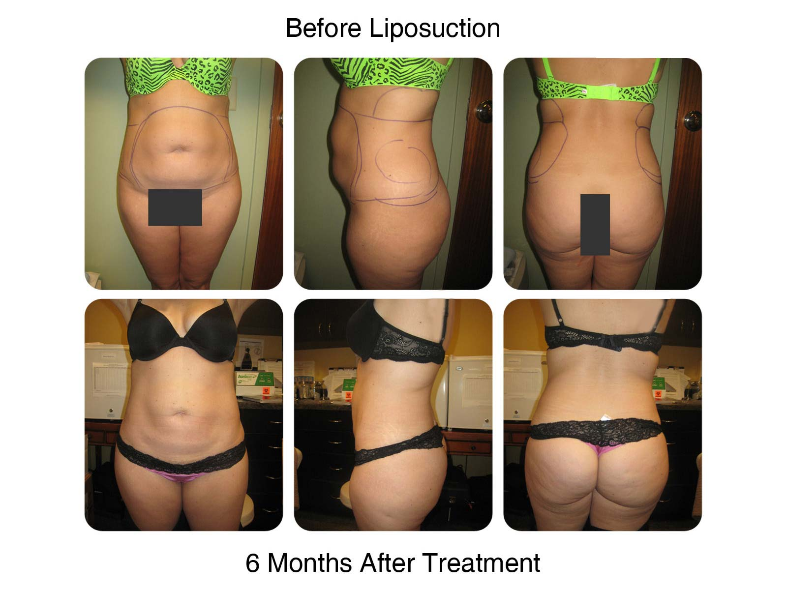 Lipo 6 before and after