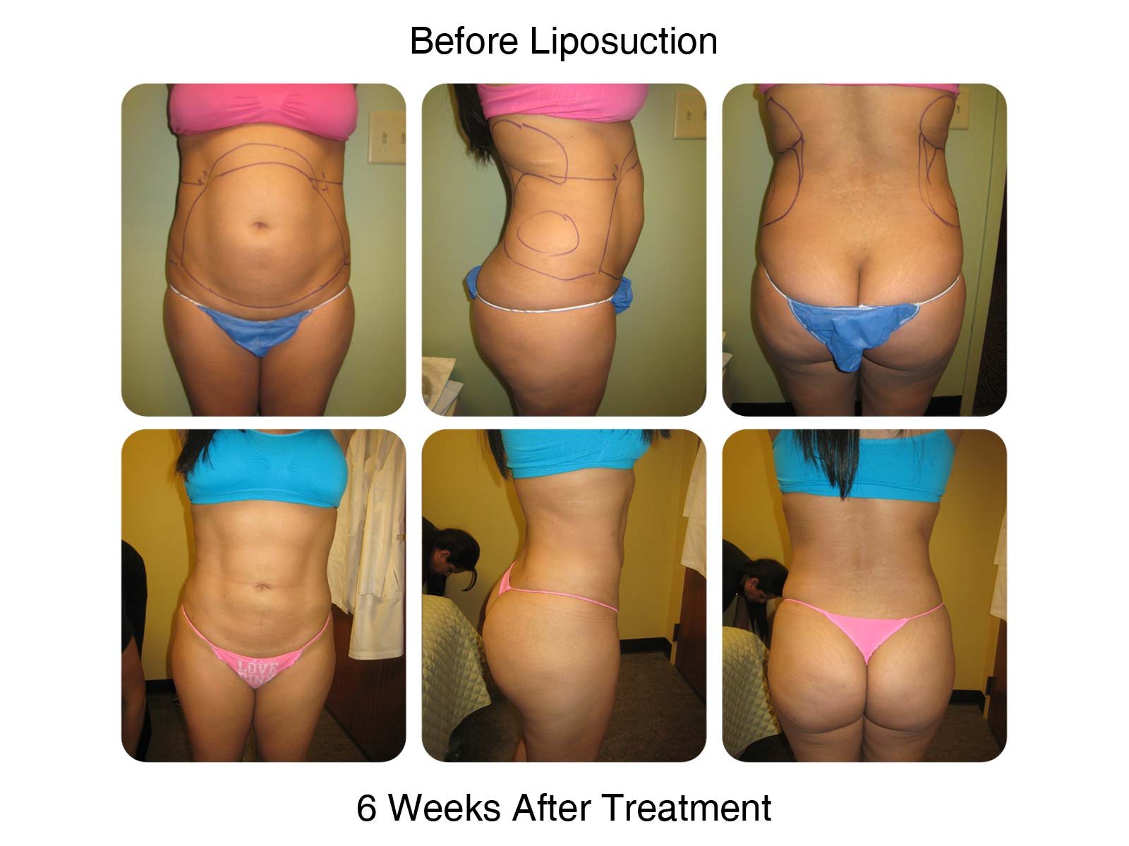 6 Weeks After - Lipo Results