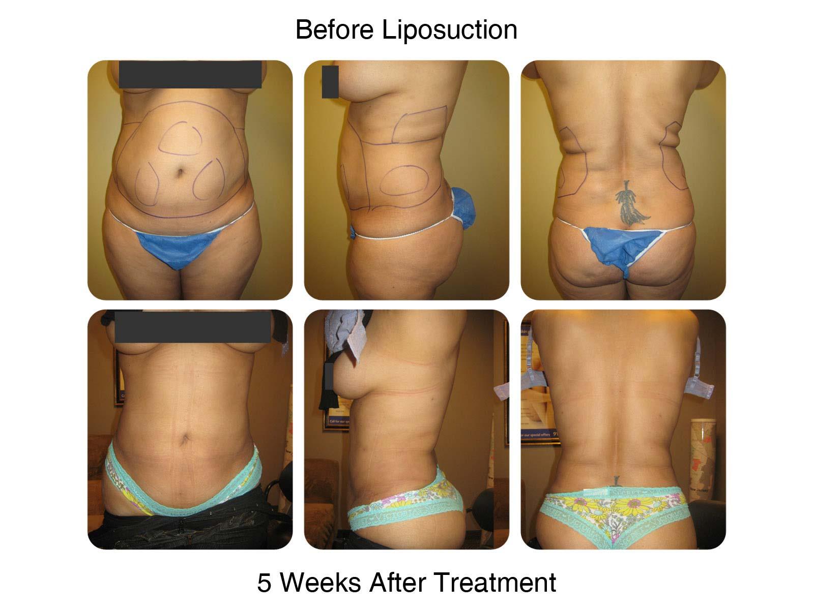 Liposuction Procedure at New Radiance