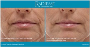 Radiance for Front Smile Lines - Before and After