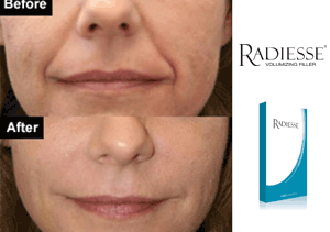 Before and After - Radiesse Volumizing Filler