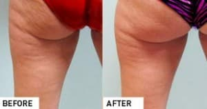 SmoothShapes Cellulite Reduction