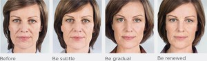 Before and Afters - Franca