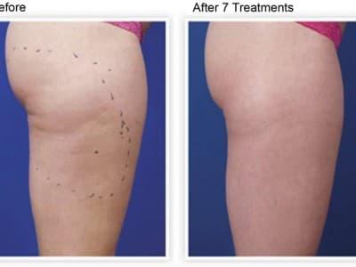 Venus Freeze Cellulite Reduction