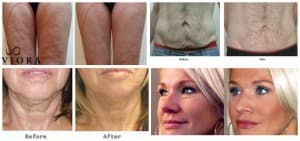 Viora Skin Tightening
