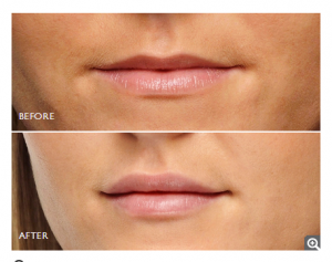 Restylane Lip Enhancement - Before & After