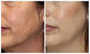microdermabrasion results