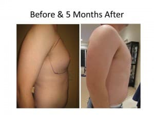 Male Breast Reduction 1