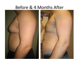 Male Breast Reduction 5