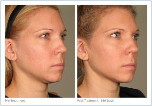 Ultherapy 1
