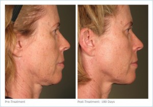 Ultherapy 2