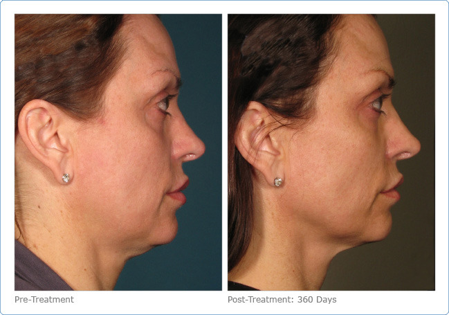 Ultherapy 5