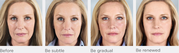 sculptra before after 1