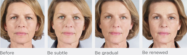 sculptra before after 3
