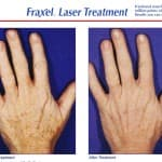 Fraxel hands - Before and After