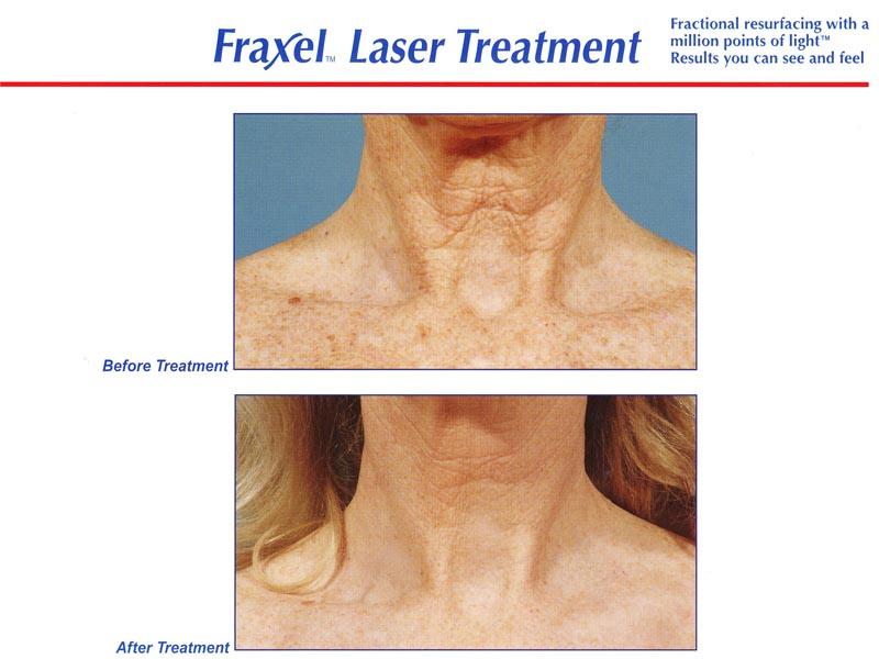 Fraxel neck 4