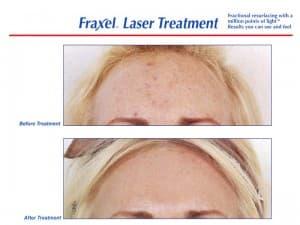 Fraxel forehead