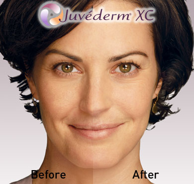 Juvederm Before After 3