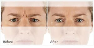 xeomin Before After 3