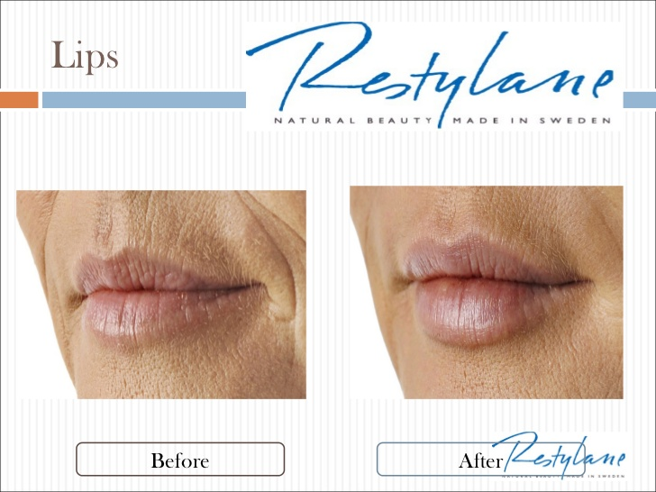Restylane SIlk for lips