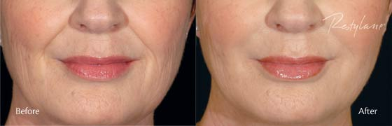 restylane before after 1