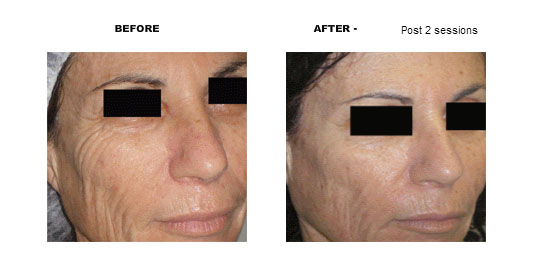 Viora face - Before and After