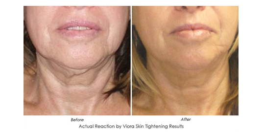 Viora face - Before and After 2