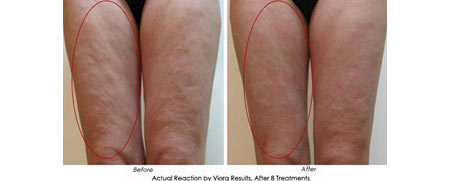 Viora Body - Before After