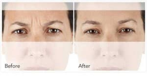 xeomin BeforeAfter 1