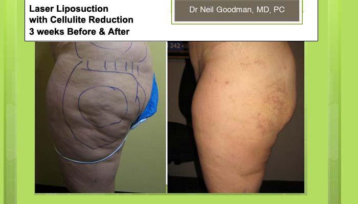 Laser Liposuction after 3 weeks
