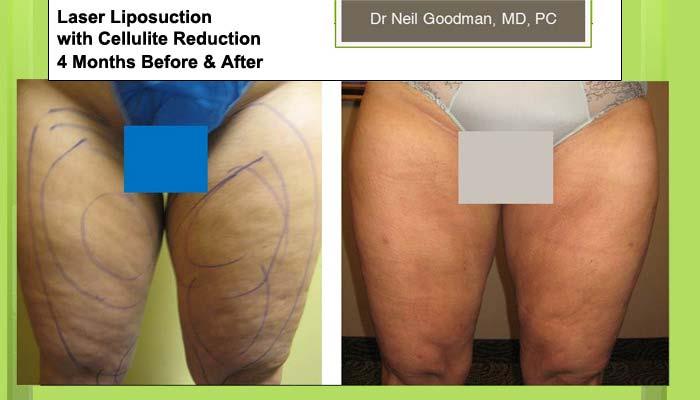 Laser Liposuction Result