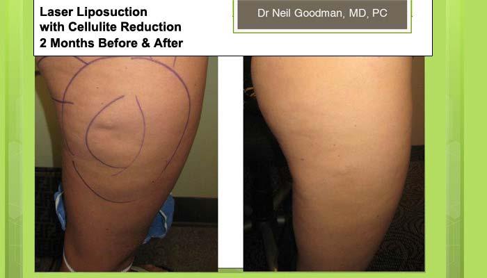 Laser Liposuction Cellulite Reductiom