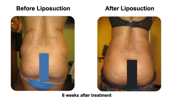 Liposuction 6 Weeks