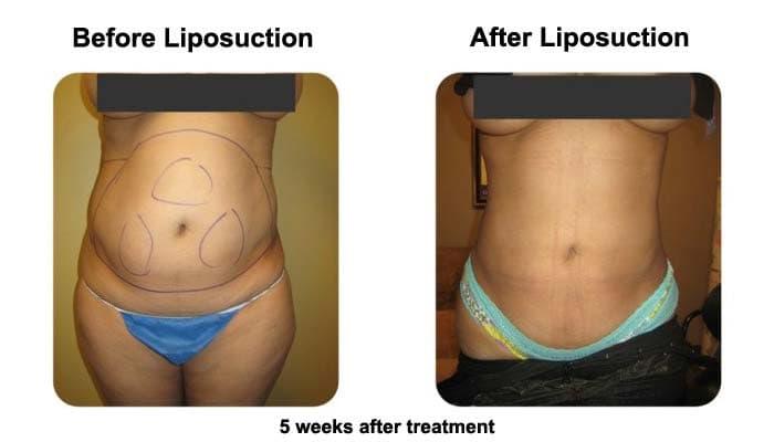 Liposuction Fat Transfer 5 Weeks