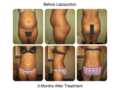 liposuction-before-and-after-10