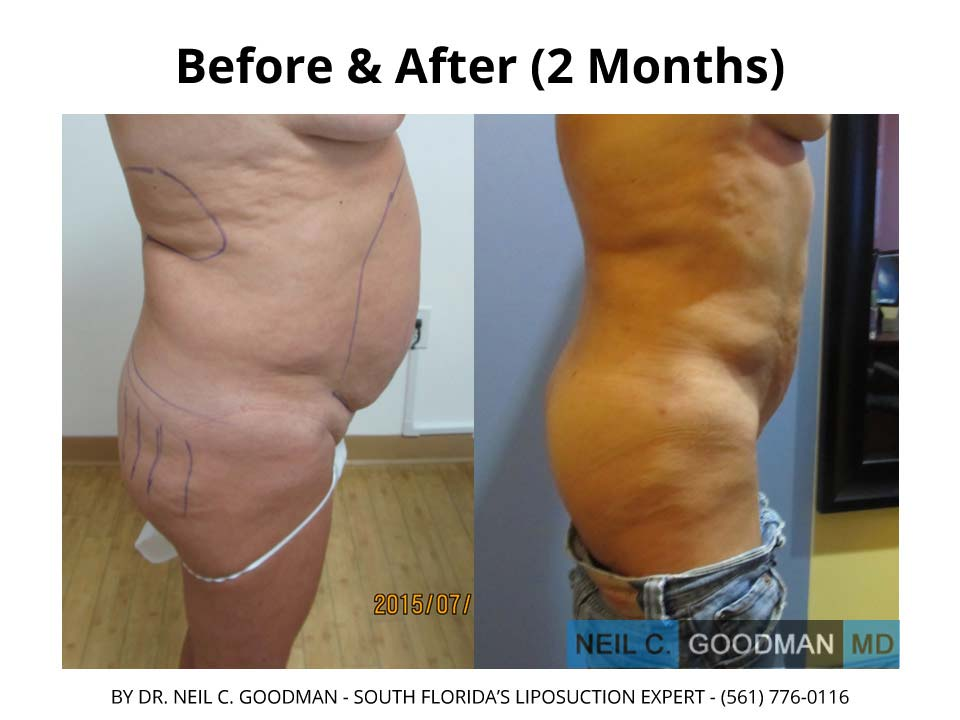 Brazilian Buttlift 2 month results