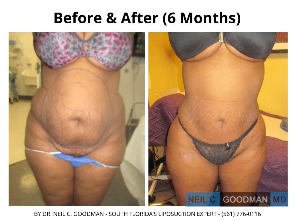 Large Volume Liposuction woman 6 Months