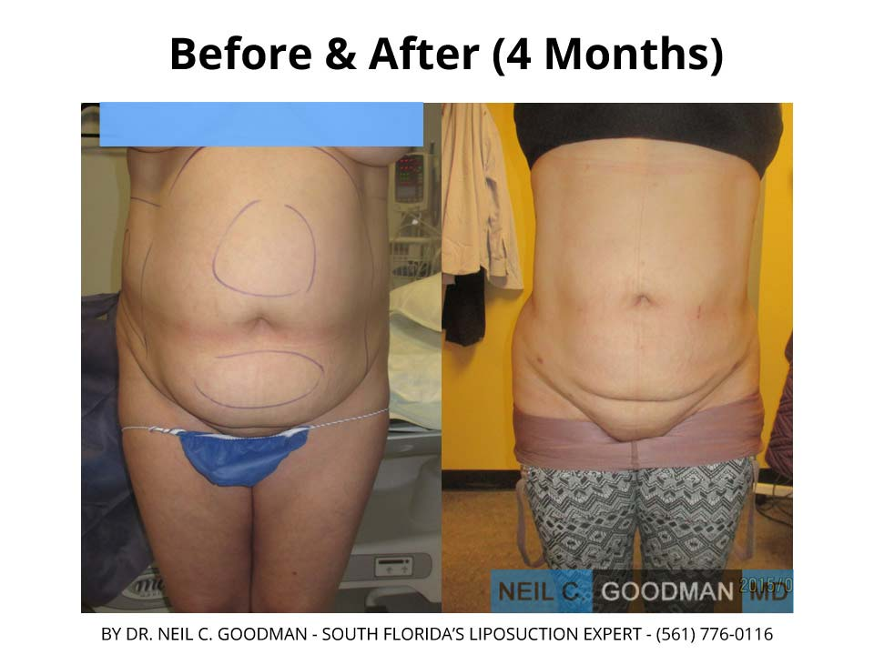 Large Volume Liposuction woman 4 Months