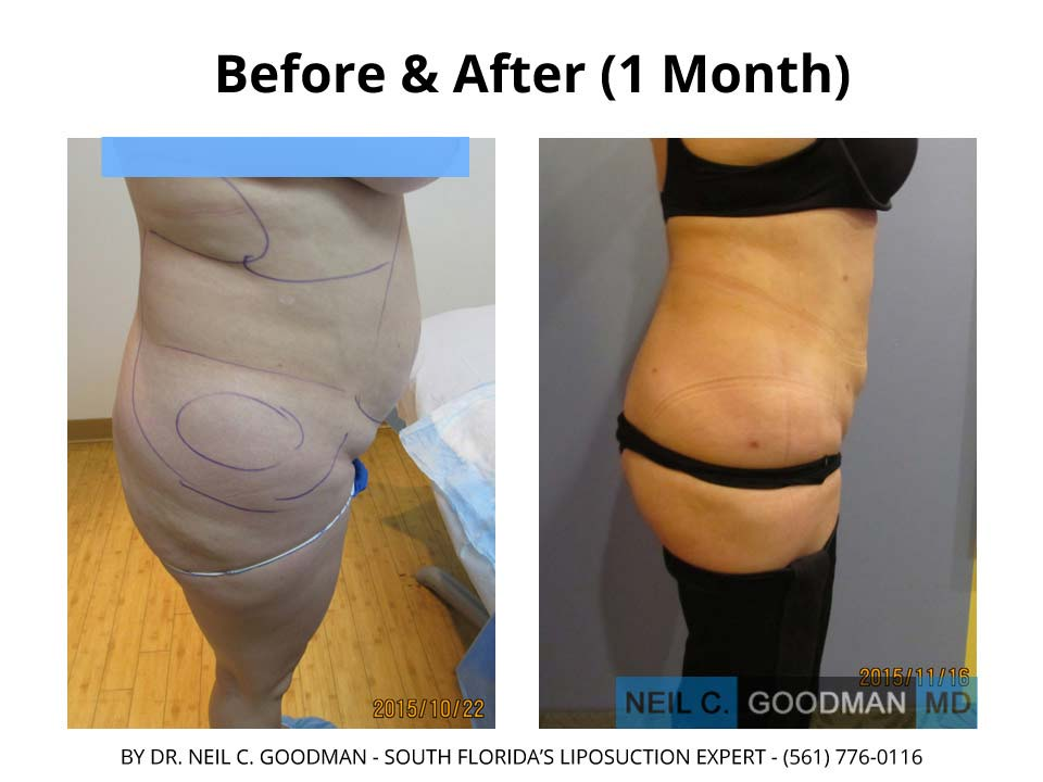 Large Volume Liposuction of woman after 1 Month photo